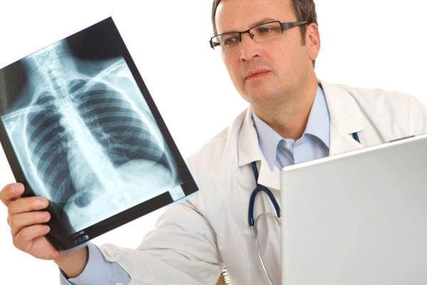 Врач с рентгеном