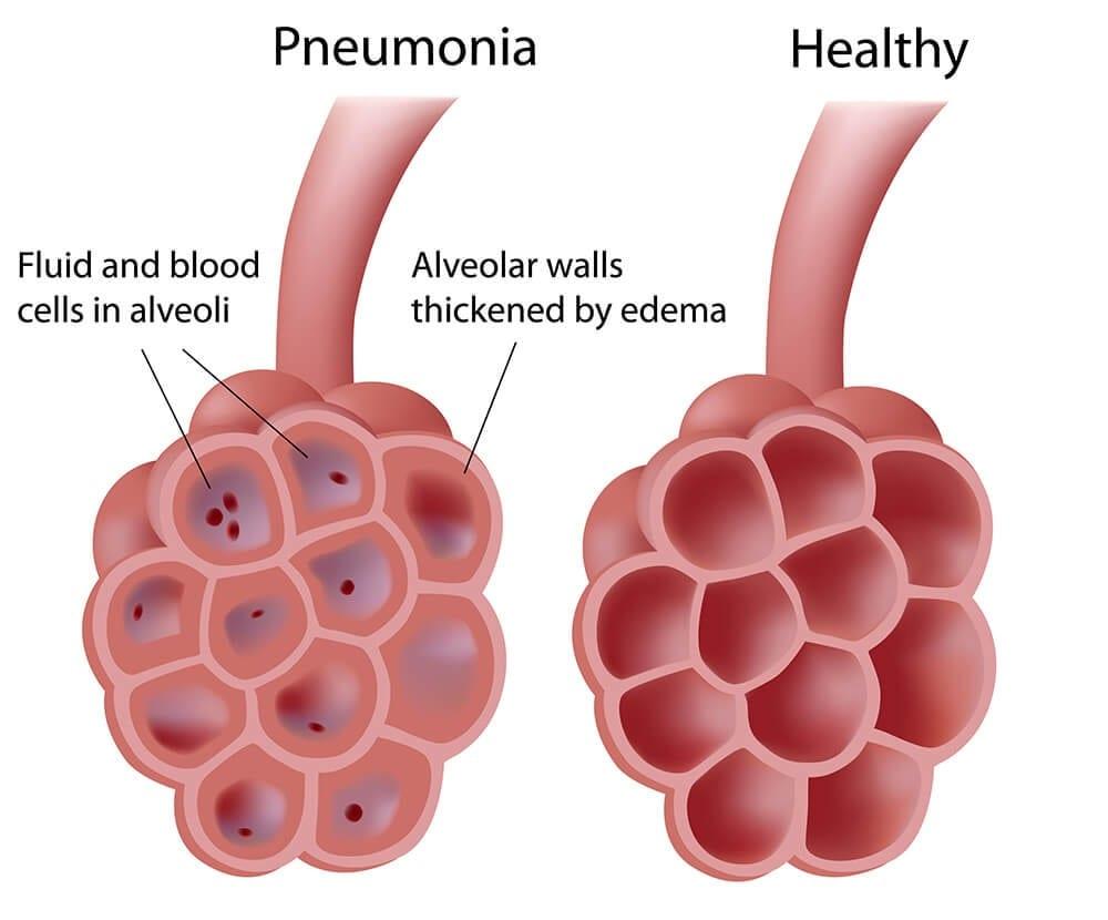 излечение пневмонии