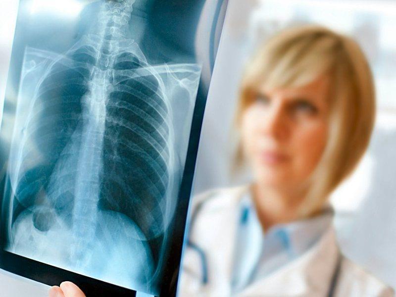рентген взрослого человека