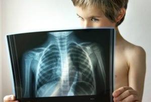 ребенок с рентгеном