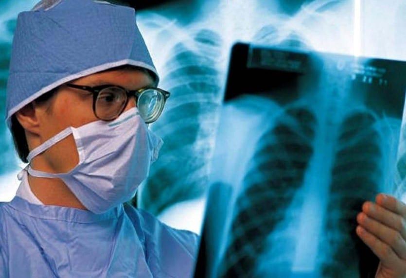 рентген легких у врача