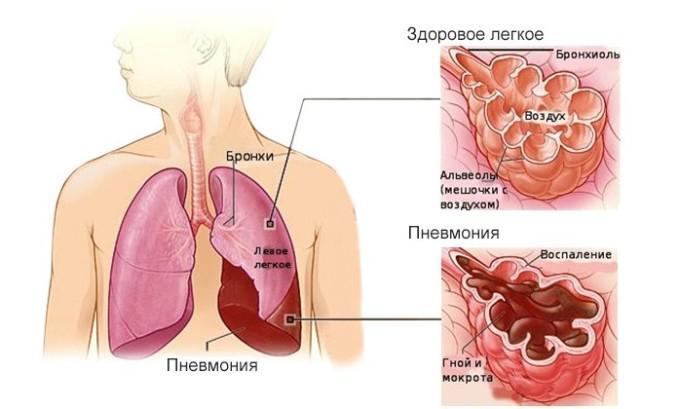 Отличие пневмонии от коронавируса